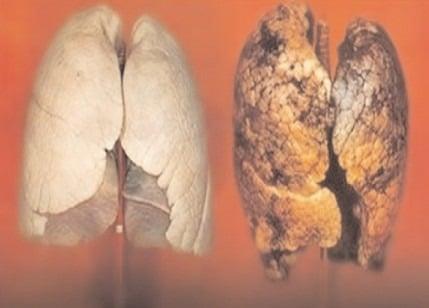 """MINISTERUL SĂNĂTĂŢII DIRECŢIA DE SĂNĂTATE PUBLICĂ DÂMBOVIŢA COMUNICAT DE PRESĂ ZIUA NAŢIONALĂ FĂRĂ TUTUN Direcţia de Sănătate Publică Dâmboviţa, organizează campania """"COVID-19 -UN MOTIV ÎN PLUS PENTRU A RENUNŢA LA FUMAT!"""", în luna noiembrie 2020"""